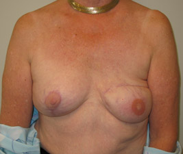 Breast reconstruction necrosis consider, that